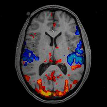 A Functional Magnetic Resonance Imaging (fMRI) image
